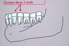 Teeth in jaw bone